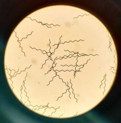 spiruline au microscope